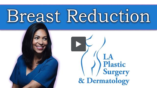 Breast Reduction at LA Plastic Surgery