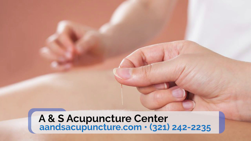 Acupuncture in Melbourne FL, A & S Accupuncture