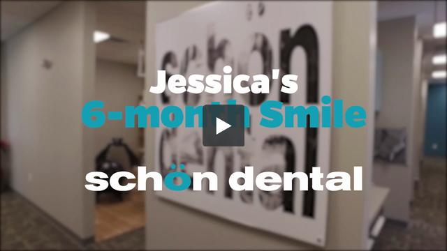 Jessicas 6 month Smile
