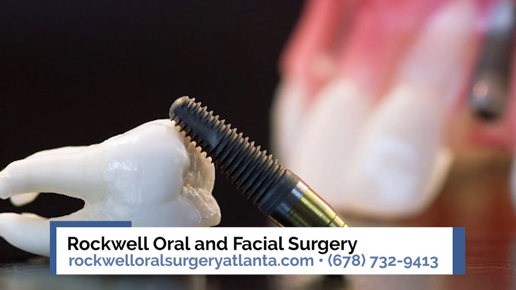 Oral Surgeon in Atlanta GA, Rockwell Oral and Facial Surgery