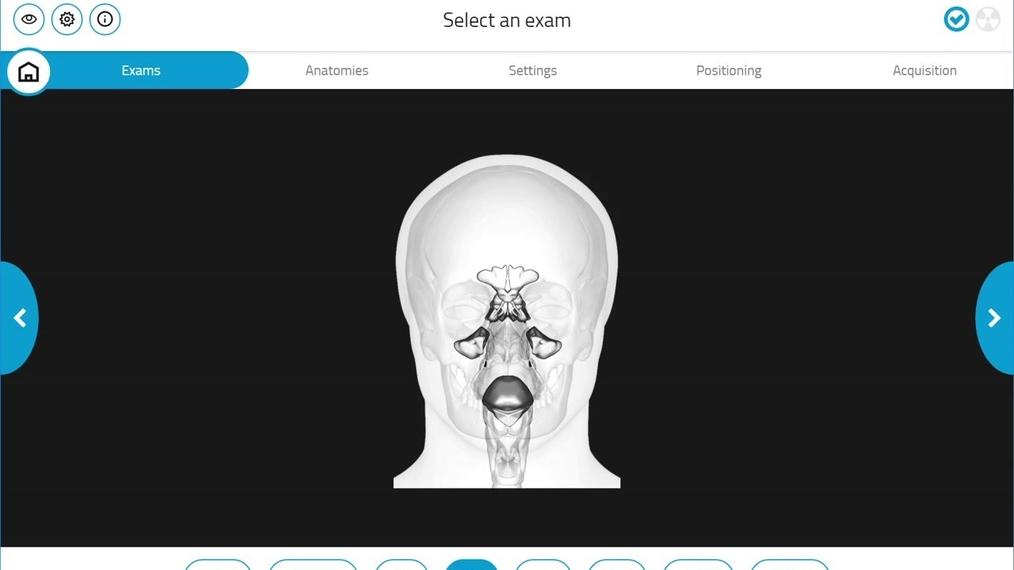 Giano HR 3D Maxillary Sinus Scan