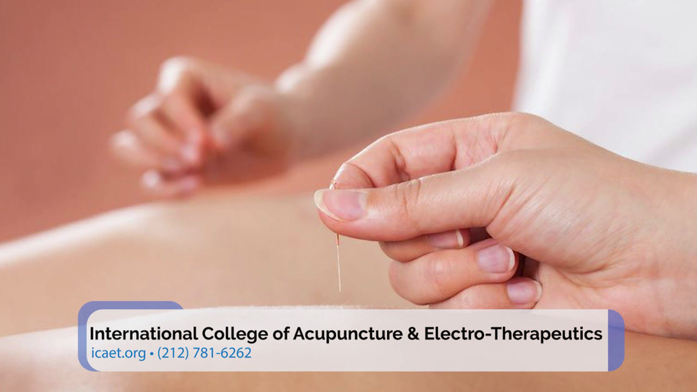 Electro-Acupuncture in New York NY, International College of Acupuncture & Electro-Therapeutics