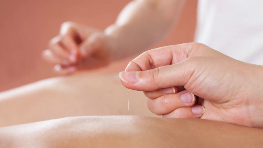 Acupuncture in Elgin IL, Roessler Acupuncture Clinic