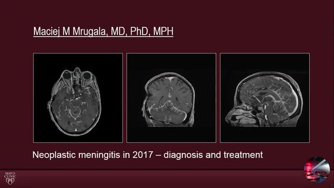 Neoplastic Meningitis in 2017 - Diagnosis and Treatment