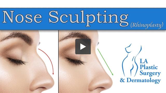 nose sculpting video LA Plastic Surgery