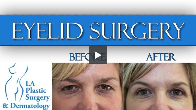 Eyelid Surgery at LA Plastic Surgery