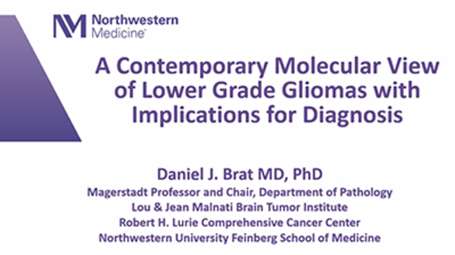 A Contemporary Molecular View of Lower Grade Gliomas with Implications for Diagnosis