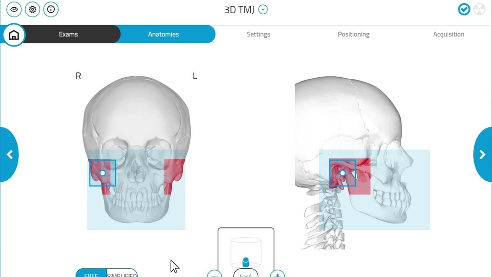 GiANO HR 3D TMJ Scan