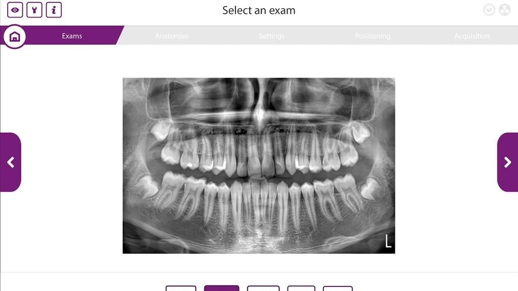 Hyperion X9 PRO 2D Dentition Acquisition