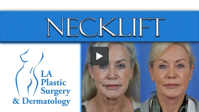 Neck Lift at LA Plastic Surgery