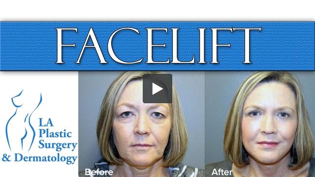 Facelift at LA Plastic Surgery